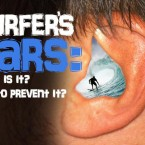 Surfer's Ears (Swimmer's ears the correct term): What is it? How to Prevent it?
