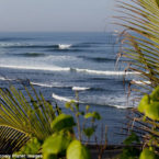 Shark Attack in Bali: US Surfer Will Transfer to Singapore For Treatment