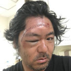 Japanese Surfer Slices Face Open Riding a Hydrofoil Board