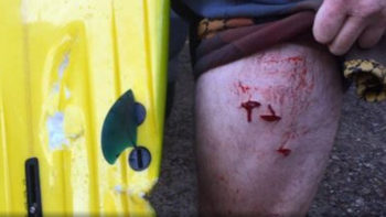 Third Shark Attacks in New South Wales in The Past Month