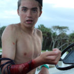 Teen Surfer Wearing Shark Repelling Band, Gets Attacked by Shark