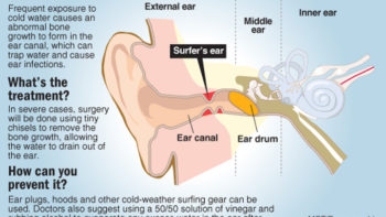 The Surf Injury You Rarely Hear About: Surfer's Ear