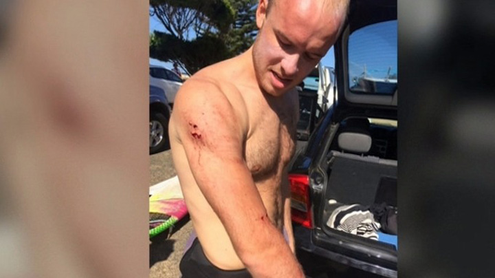 British Surfer Thanks Mick Fanning After Punching Shark